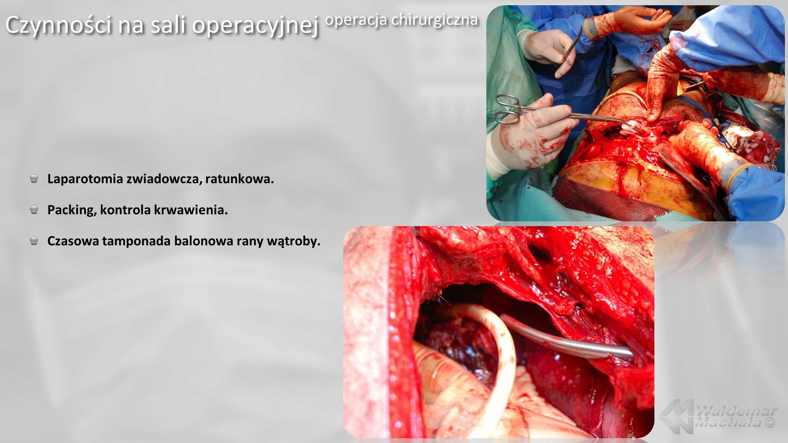 Laparotomia zwiadowcza, ratunkowa. Packing, kontrola krwawienia. Czasowa tamponada balonowa rany wątroby. Czynności na sali operacyjnej operacja chiru
