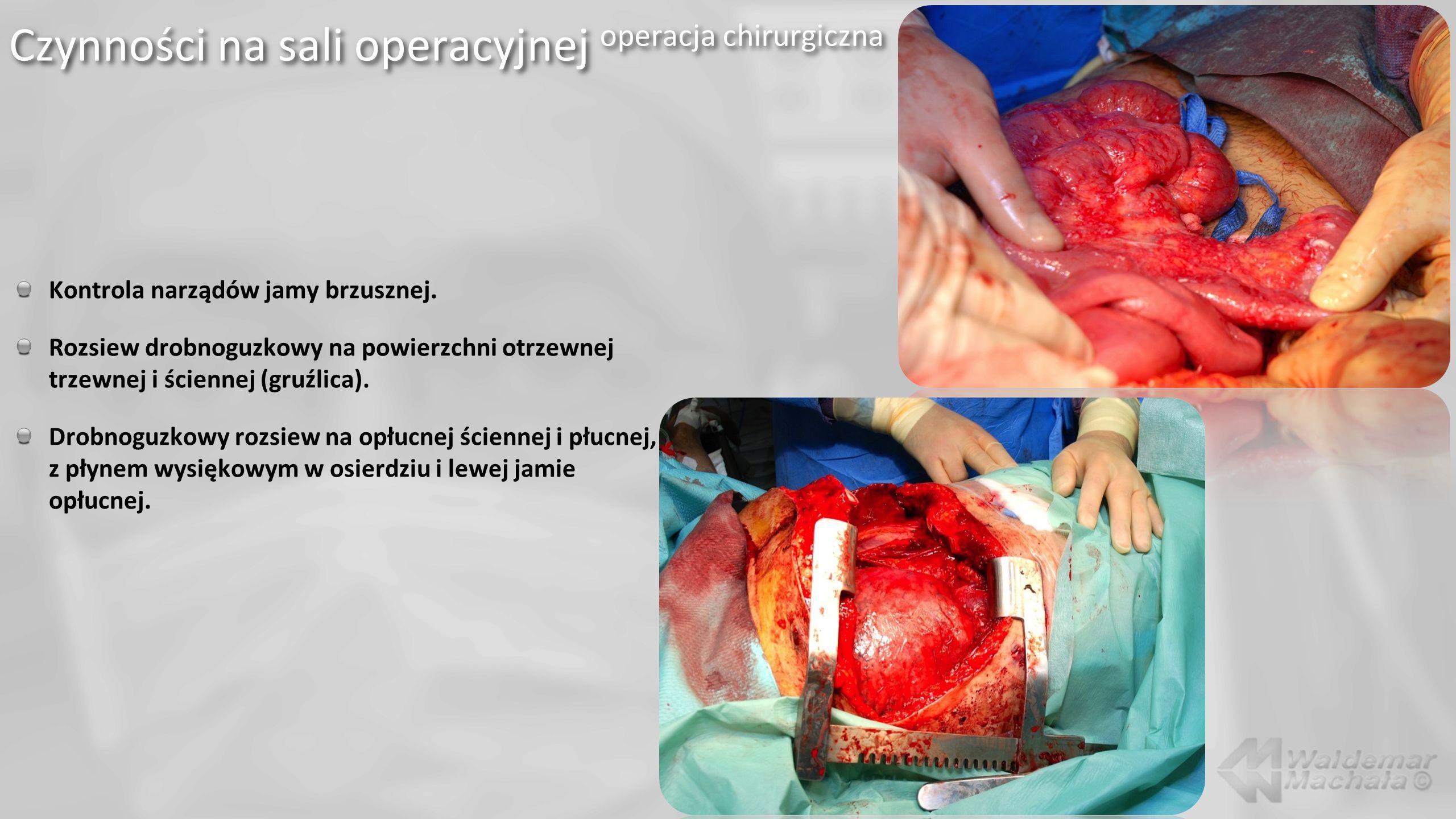 Kontrola narządów jamy brzusznej. Rozsiew drobnoguzkowy na powierzchni otrzewnej trzewnej i ściennej (gruźlica). Drobnoguzkowy rozsiew na opłucnej ści