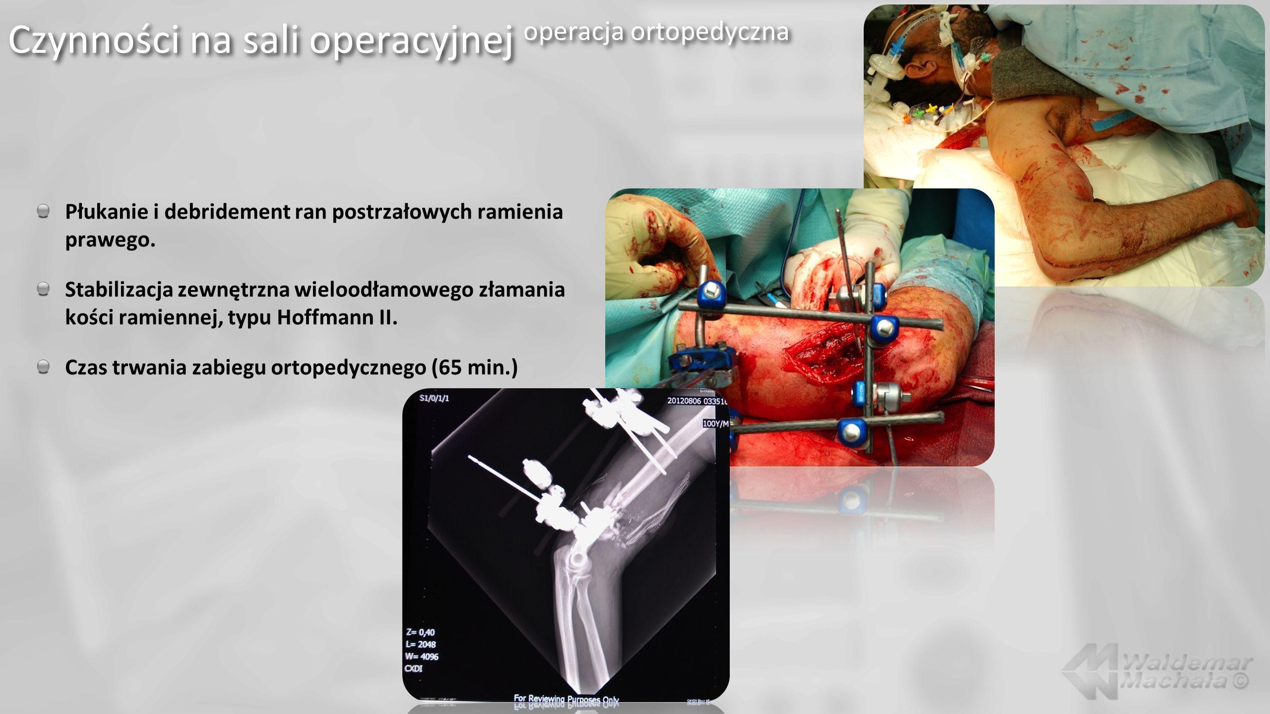 Płukanie i debridement ran postrzałowych ramienia prawego. Stabilizacja zewnętrzna wieloodłamowego złamania kości ramiennej, typu Hoffmann II. Czas tr