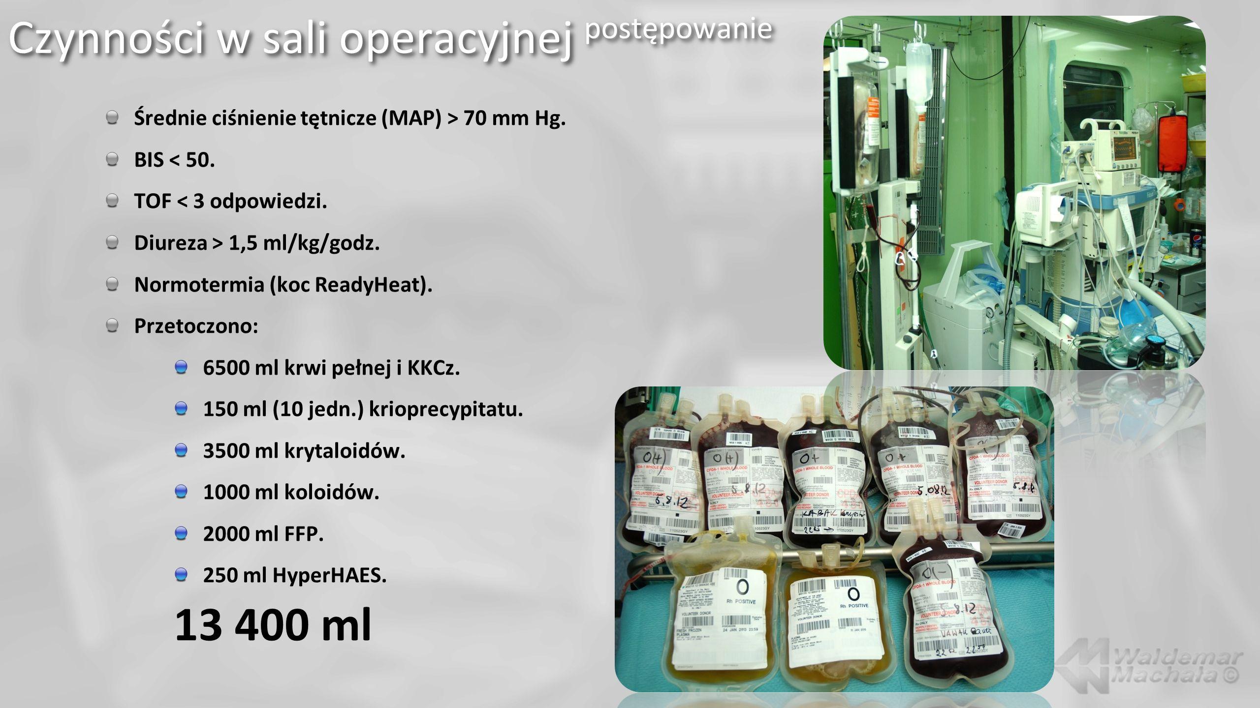 Średnie ciśnienie tętnicze (MAP) > 70 mm Hg. BIS < 50. TOF < 3 odpowiedzi. Diureza > 1,5 ml/kg/godz. Normotermia (koc ReadyHeat). Przetoczono: 6500 ml