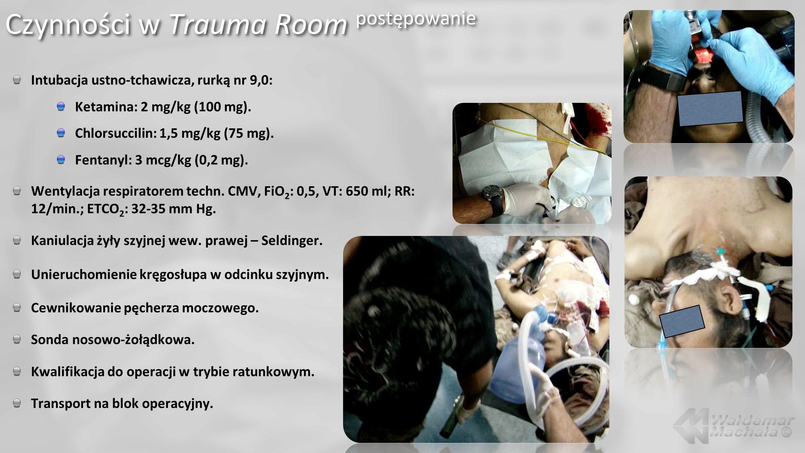 Intubacja ustno-tchawicza, rurką nr 9,0: Ketamina: 2 mg/kg (100 mg). Chlorsuccilin: 1,5 mg/kg (75 mg). Fentanyl: 3 mcg/kg (0,2 mg). Wentylacja respira