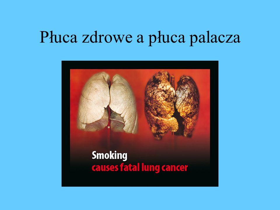 Skutki palenia: Nowotwory * Rak płuc * Rak wargi, języka oraz jamy ustnej * Rak krtani * Rak gardła * Rak przełyku * Rak nerki * Rak pęcherza moczowego * Rak trzustki