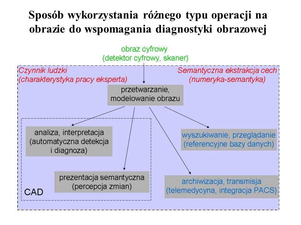 4 Wspomaganie diagnostyki obrazowej Wspomaganie metodami komputerowymi obrazowej diagnostyki medycznej należy w dużym stopniu do obszaru sztucznej inteligencji: - przede wszystkim wykorzystanie wielu wspólnych sposobów analizy danych, algorytmów przetwarzania, detekcji i klasyfikacji informacji; - równie istotne jest stosowanie teorii przetwarzania obrazów, dostarczającej narzędzi ekstrakcji informacji i modelowania percepcji zmian w obrazach; - wykorzystanie wiedzy medycznej, charakterystyki subiektywnych ocen zmian, procesu interpretacji obrazów i weryfikacji ocen w niepowtarzalnych uwarunkowaniach klinicznych.