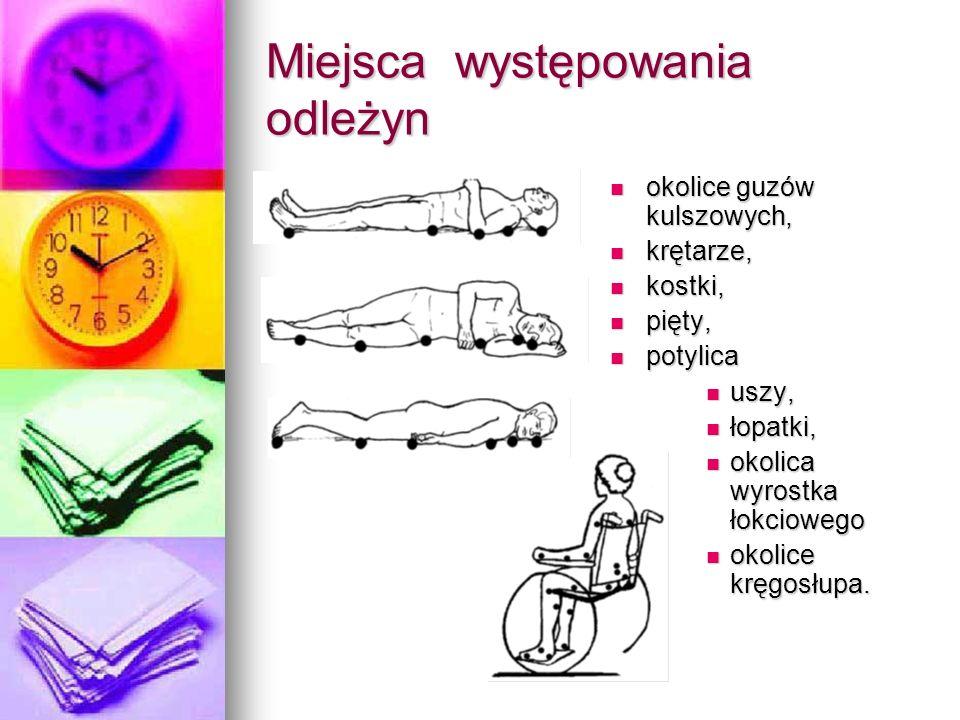 Miejsca występowania odleżyn okolice guzów kulszowych, okolice guzów kulszowych, krętarze, krętarze, kostki, kostki, pięty, pięty, potylica potylica u