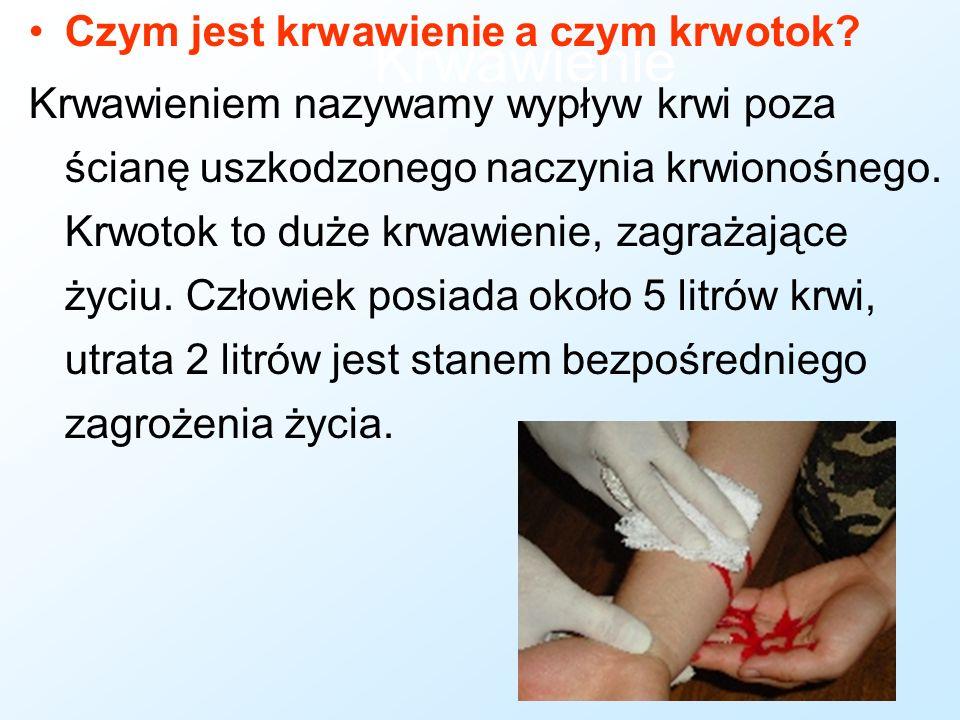 Złamanie otwarte Nie próbuj nastawiać kości ani oczyszczać rany - możesz uczynić zbyt dużą krzywdę.