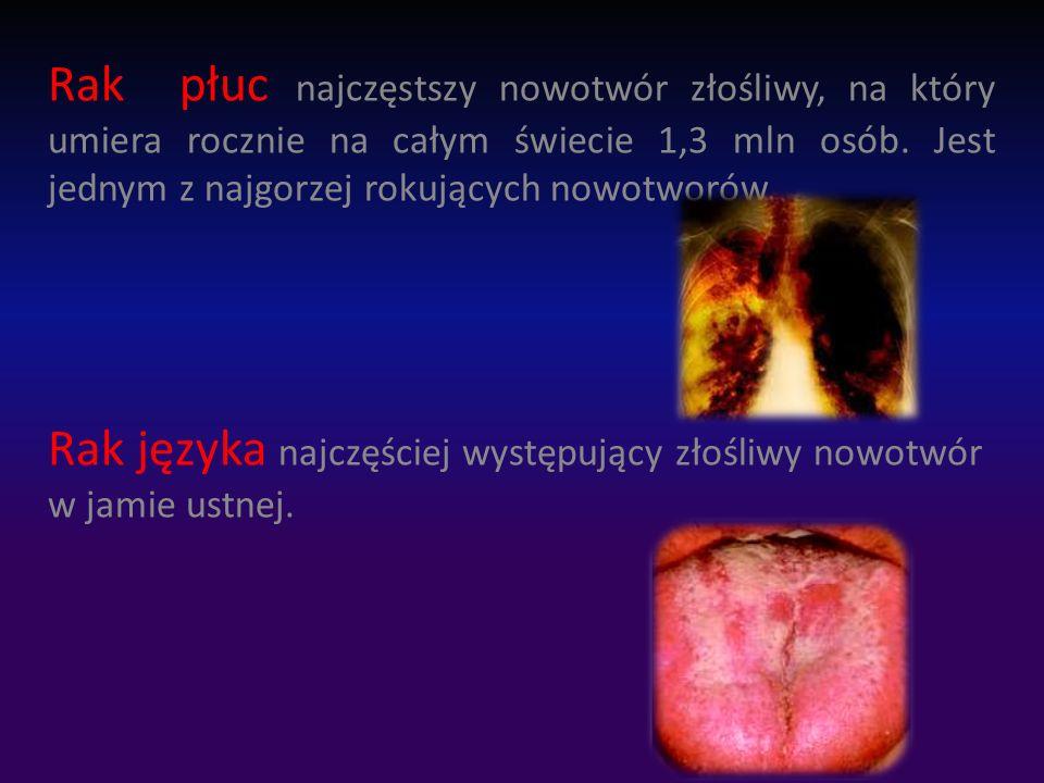 Rak płuc najczęstszy nowotwór złośliwy, na który umiera rocznie na całym świecie 1,3 mln osób.