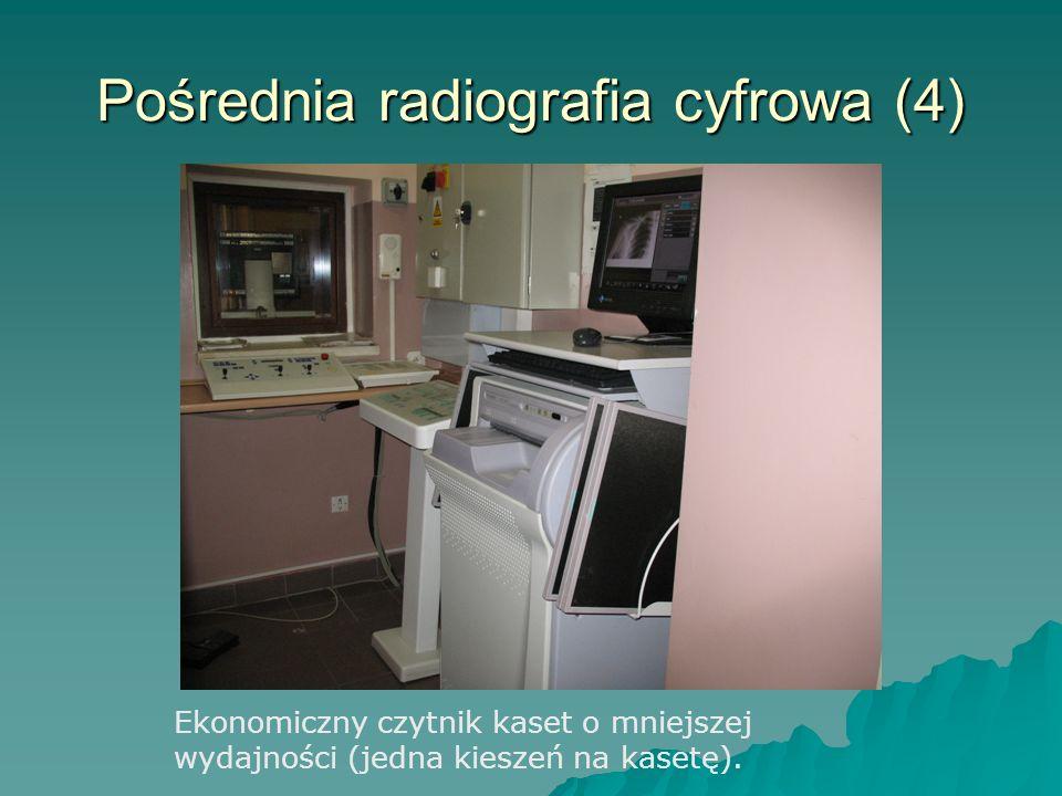 Pośrednia radiografia cyfrowa (4) Ekonomiczny czytnik kaset o mniejszej wydajności (jedna kieszeń na kasetę).