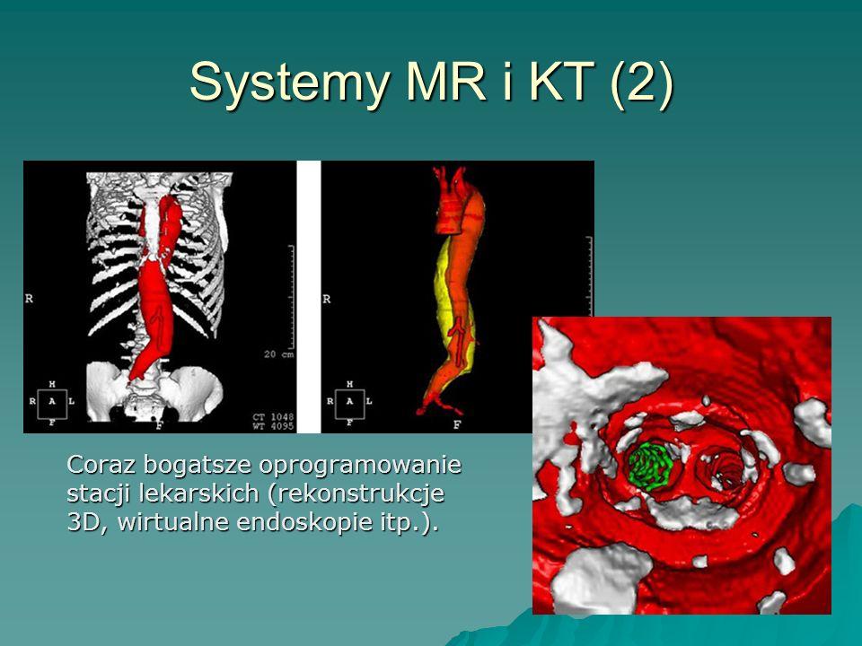 Systemy MR i KT (2) Coraz bogatsze oprogramowanie stacji lekarskich (rekonstrukcje 3D, wirtualne endoskopie itp.).