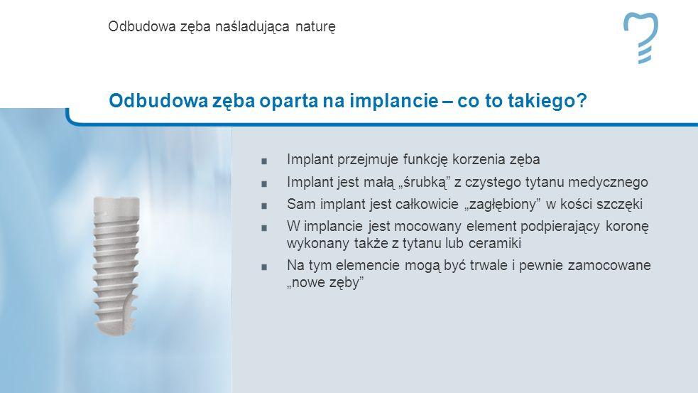 Implant przejmuje funkcję korzenia zęba Implant jest małą śrubką z czystego tytanu medycznego Sam implant jest całkowicie zagłębiony w kości szczęki W