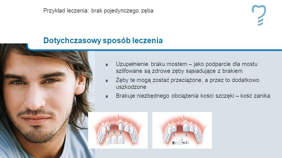 Uzupełnienie braku mostem – jako podparcie dla mostu szlifowane są zdrowe zęby sąsiadujące z brakiem Zęby te mogą zostać przeciążone, a przez to dodatkowo uszkodzone Brakuje niezbędnego obciążenia kości szczęki – kość zanika Przykład leczenia: brak pojedynczego zęba Dotychczasowy sposób leczenia