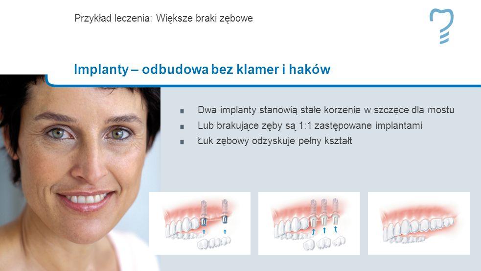 Dwa implanty stanowią stałe korzenie w szczęce dla mostu Lub brakujące zęby są 1:1 zastępowane implantami Łuk zębowy odzyskuje pełny kształt Przykład leczenia: Większe braki zębowe Implanty – odbudowa bez klamer i haków