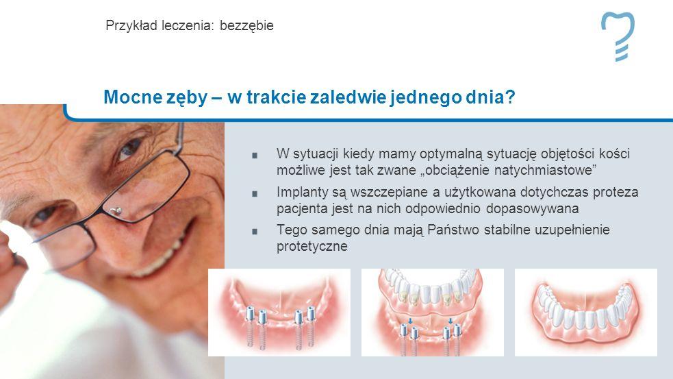 W sytuacji kiedy mamy optymalną sytuację objętości kości możliwe jest tak zwane obciążenie natychmiastowe Implanty są wszczepiane a użytkowana dotychczas proteza pacjenta jest na nich odpowiednio dopasowywana Tego samego dnia mają Państwo stabilne uzupełnienie protetyczne Przykład leczenia: bezzębie Mocne zęby – w trakcie zaledwie jednego dnia?