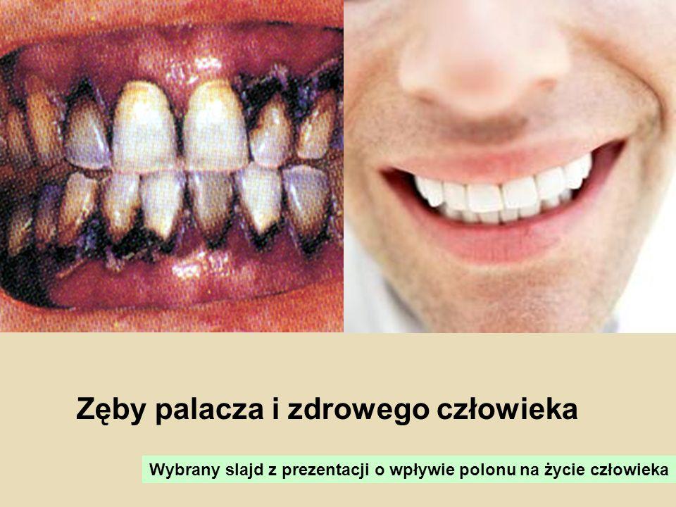 Zęby palacza i zdrowego człowieka Wybrany slajd z prezentacji o wpływie polonu na życie człowieka