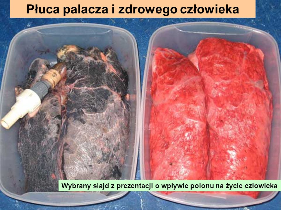 Płuca palacza i zdrowego człowieka Wybrany slajd z prezentacji o wpływie polonu na życie człowieka