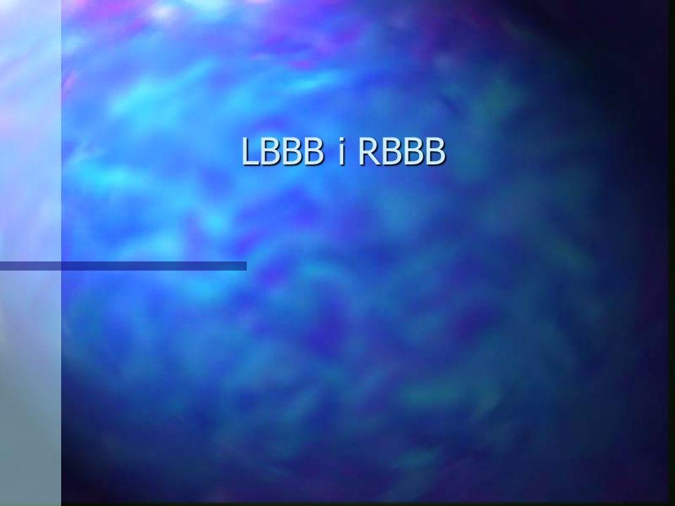 LBBB i RBBB