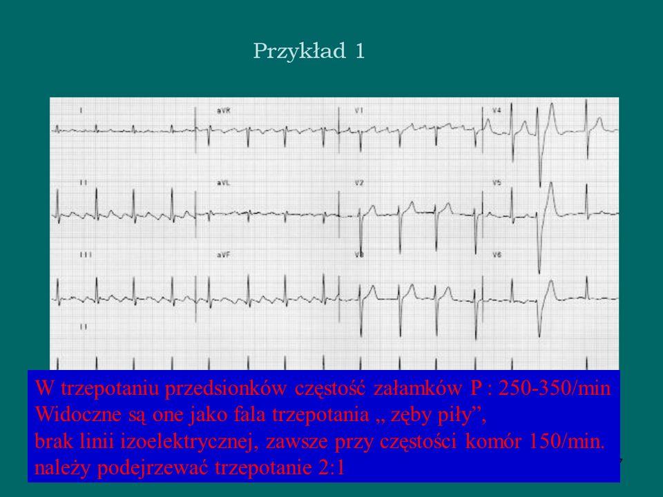 Leczenie zaburzeń rytmu serca