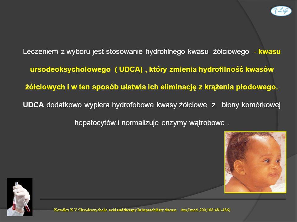 Leczeniem z wyboru jest stosowanie hydrofilnego kwasu żółciowego - kwasu ursodeoksycholowego ( UDCA), który zmienia hydrofilność kwasów żółciowych i w
