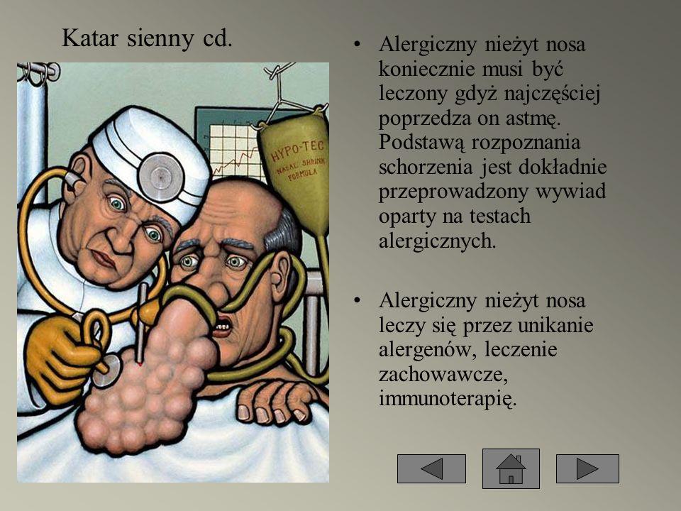 Alergiczny nieżyt nosa koniecznie musi być leczony gdyż najczęściej poprzedza on astmę. Podstawą rozpoznania schorzenia jest dokładnie przeprowadzony
