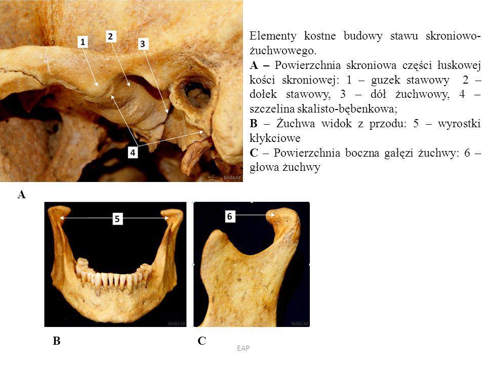 A Elementy kostne budowy stawu skroniowo- żuchwowego.