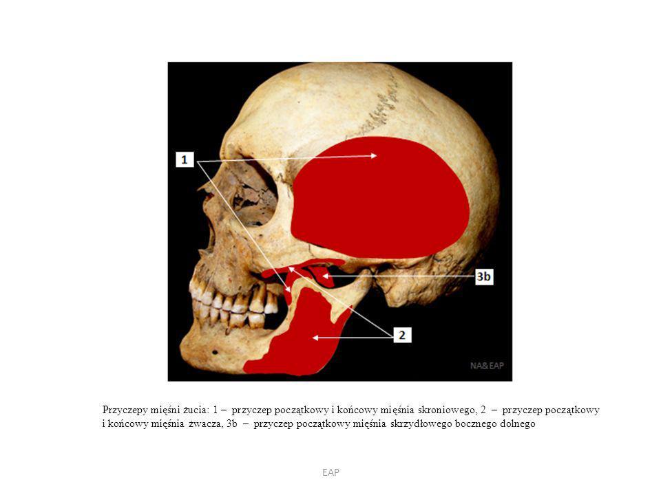 EAP Przyczepy mięśni żucia: 1 – przyczep początkowy i końcowy mięśnia skroniowego, 2 – przyczep początkowy i końcowy mięśnia żwacza, 3b – przyczep początkowy mięśnia skrzydłowego bocznego dolnego
