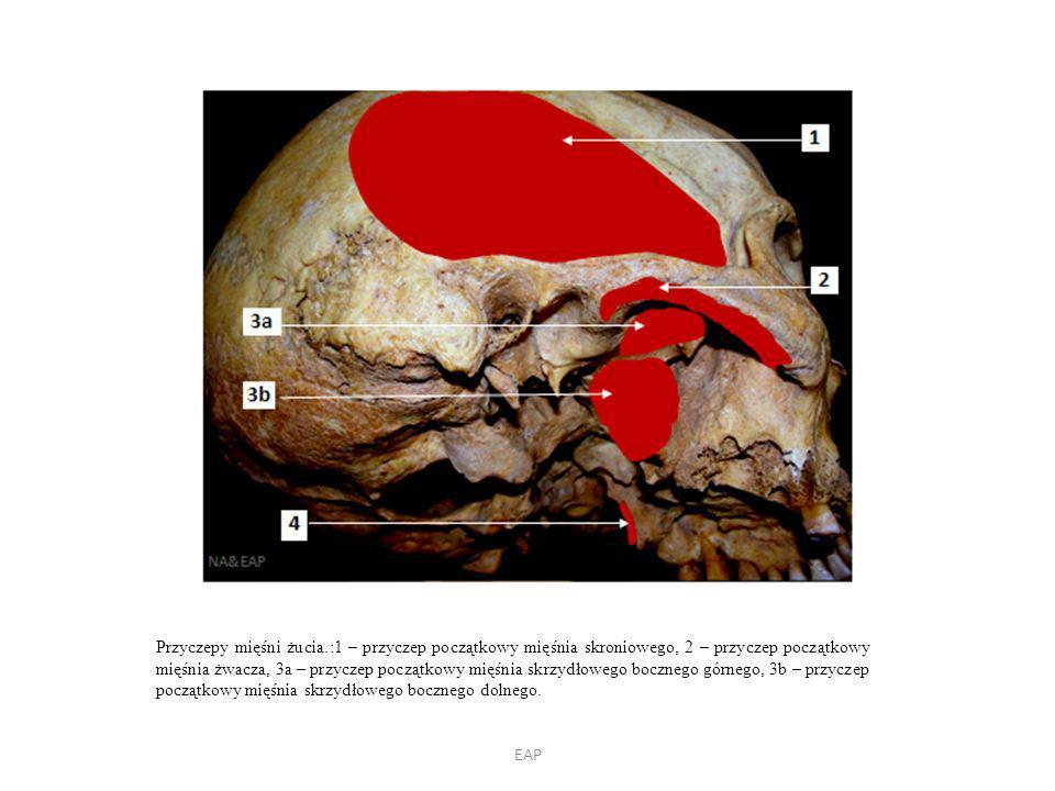 EAP Przyczepy mięśni żucia.:1 – przyczep początkowy mięśnia skroniowego, 2 – przyczep początkowy mięśnia żwacza, 3a – przyczep początkowy mięśnia skrzydłowego bocznego górnego, 3b – przyczep początkowy mięśnia skrzydłowego bocznego dolnego.