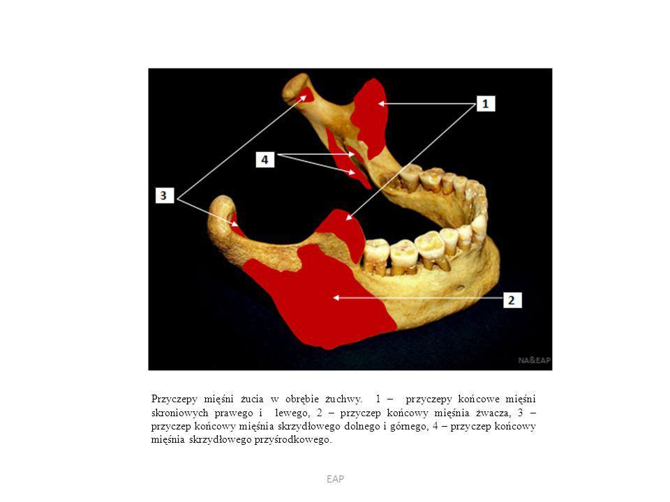 EAP Przyczepy mięśni żucia w obrębie żuchwy.