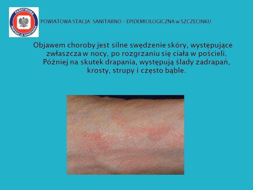 Objawem choroby jest silne swędzenie skóry, występujące zwłaszcza w nocy, po rozgrzaniu się ciała w pościeli. Później na skutek drapania, występują śl