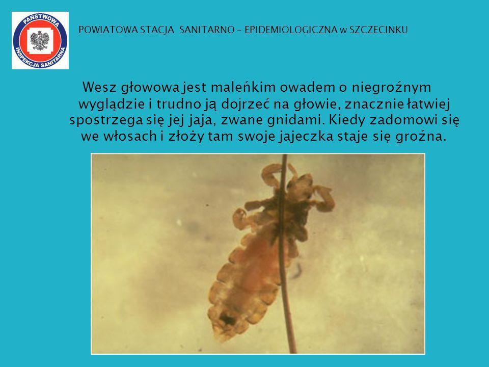 Wesz głowowa jest maleńkim owadem o niegroźnym wyglądzie i trudno j ą do j rzeć na głowie, znacznie łatwiej spostrzega się jej jaja, zwane gnidami. Ki