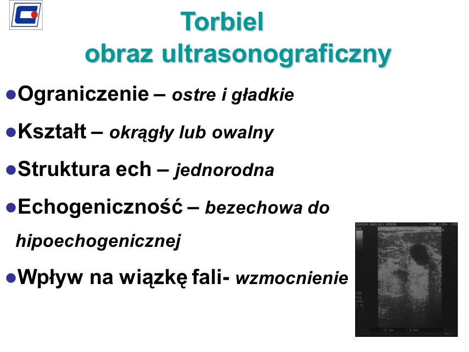 Ograniczenie – ostre i gładkie Kształt – okrągły lub owalny Struktura ech – jednorodna Echogeniczność – bezechowa do hipoechogenicznej Wpływ na wiązkę