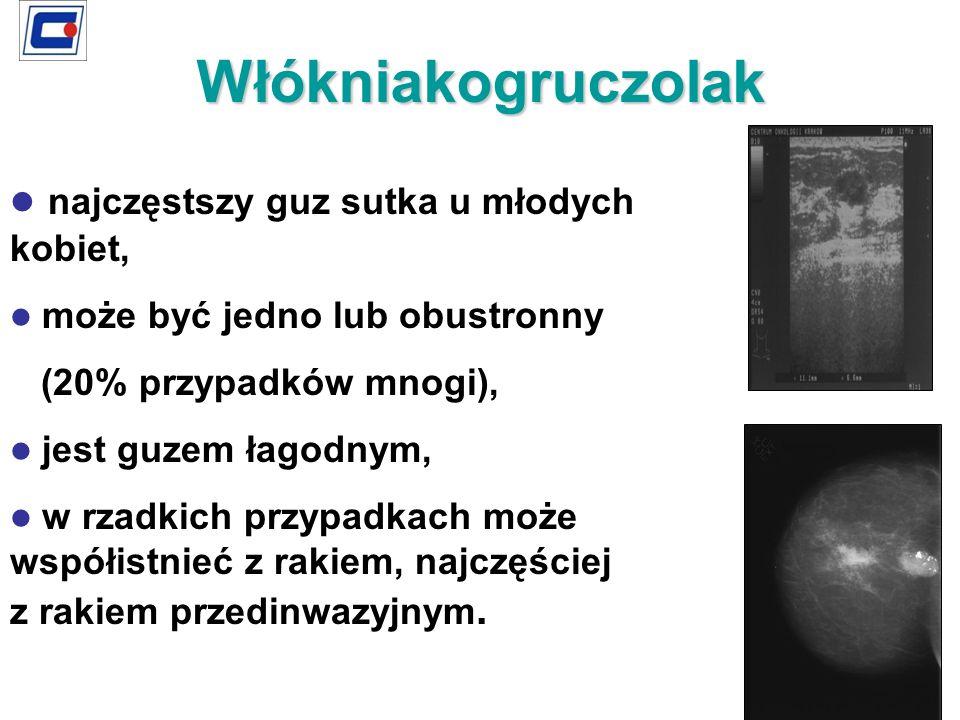 najczęstszy guz sutka u młodych kobiet, może być jedno lub obustronny (20% przypadków mnogi), jest guzem łagodnym, w rzadkich przypadkach może współis