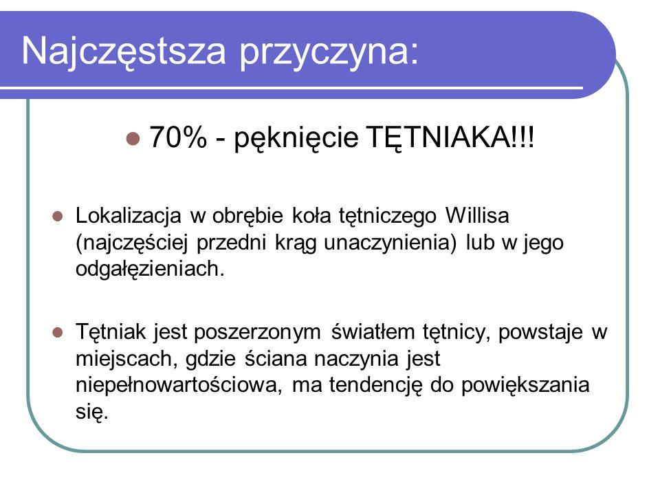 Najczęstsza przyczyna: 70% - pęknięcie TĘTNIAKA!!! Lokalizacja w obrębie koła tętniczego Willisa (najczęściej przedni krąg unaczynienia) lub w jego od