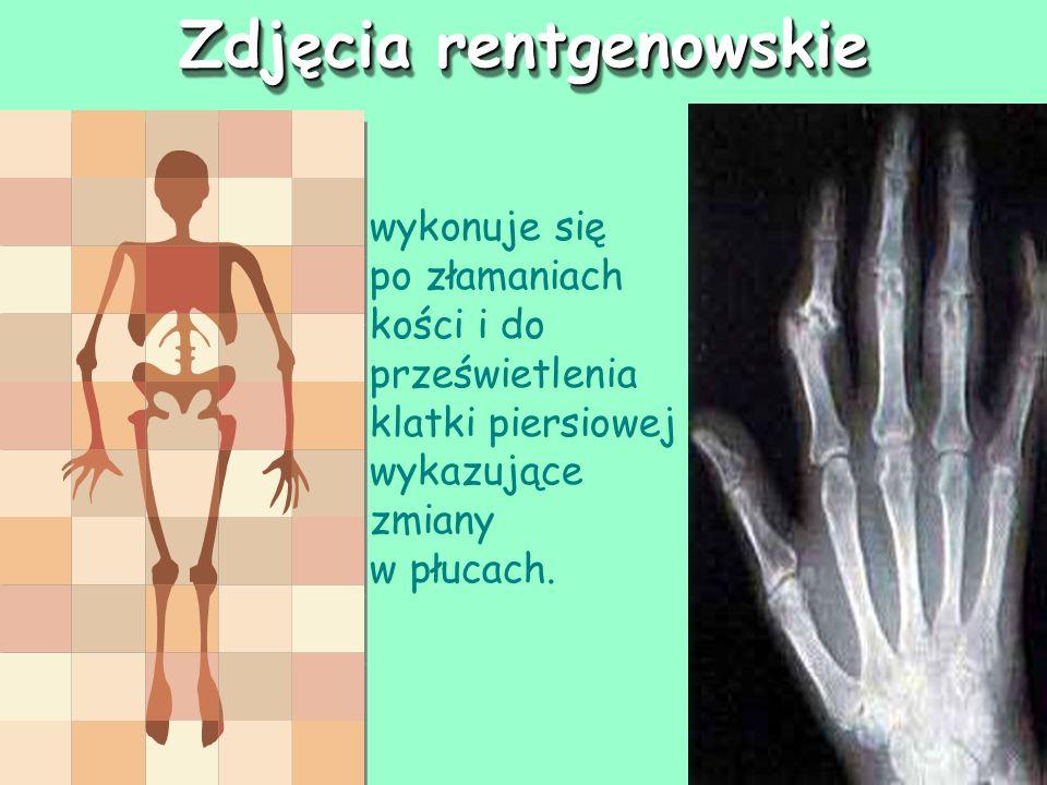 Zdjęcia rentgenowskie wykonuje się po złamaniach kości i do prześwietlenia klatki piersiowej wykazujące zmiany w płucach.