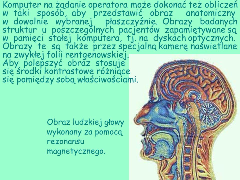 Obraz ludzkiej głowy wykonany za pomocą rezonansu magnetycznego. Komputer na żądanie operatora może dokonać też obliczeń w taki sposób, aby przedstawi