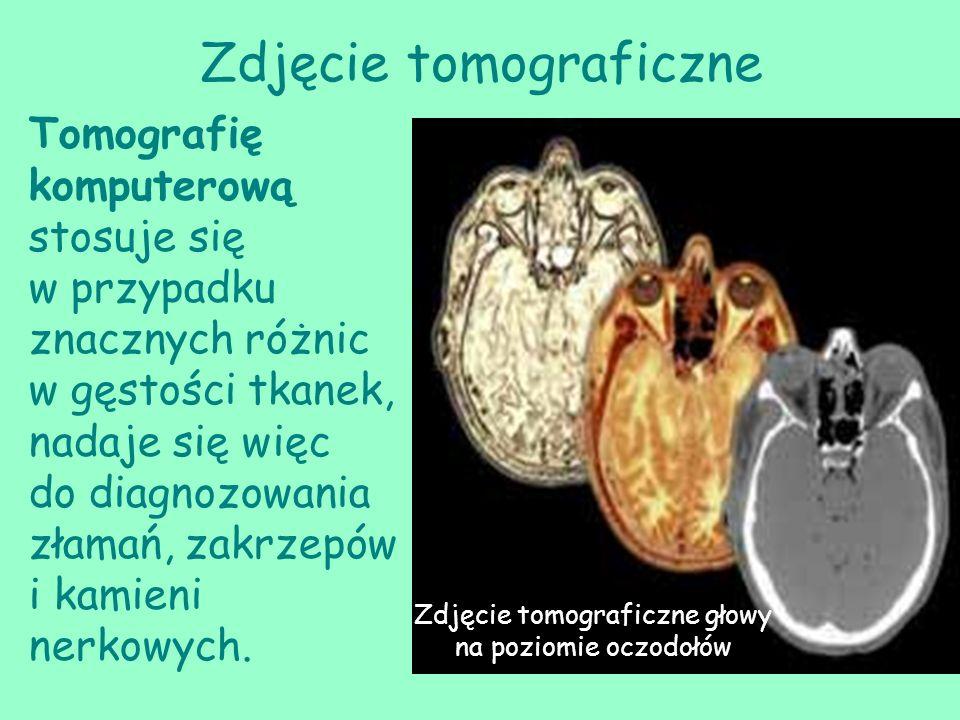 Zdjęcie tomograficzne Tomografię komputerową stosuje się w przypadku znacznych różnic w gęstości tkanek, nadaje się więc do diagnozowania złamań, zakr