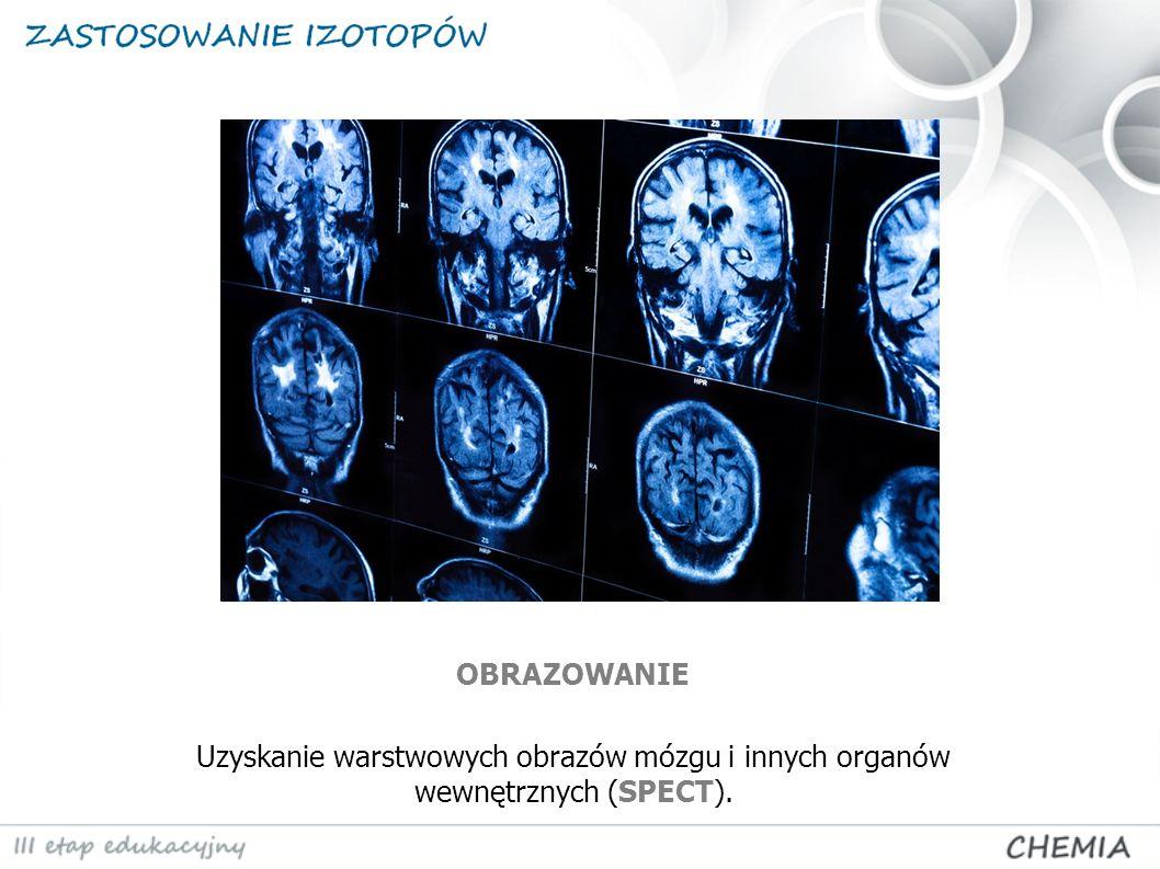 OBRAZOWANIE Uzyskanie warstwowych obrazów mózgu i innych organów wewnętrznych (SPECT).