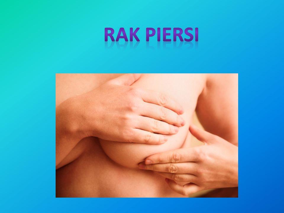 Czynniki ryzyka: Przyczyny większości przypadków raka piersi nie są możliwe do ustalenia.