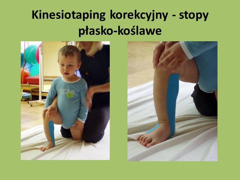 Kinesiotaping korekcyjny - stopy płasko-koślawe