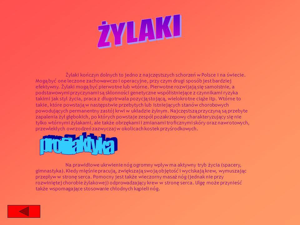 Żylaki kończyn dolnych to jedno z najczęstszych schorzeń w Polsce i na świecie. Mogą być one leczone zachowawczo i operacyjne, przy czym drugi sposób