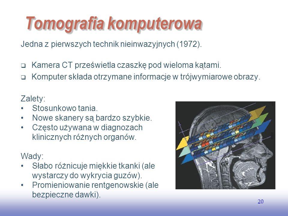 EE141 20 Tomografia komputerowa Jedna z pierwszych technik nieinwazyjnych (1972).