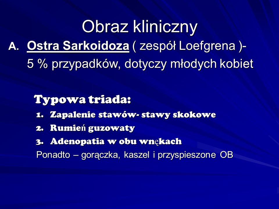 Obraz kliniczny A. Ostra Sarkoidoza ( zespół Loefgrena )- 5 % przypadków, dotyczy młodych kobiet Typowa triada: Typowa triada: 1. Zapalenie stawów- st