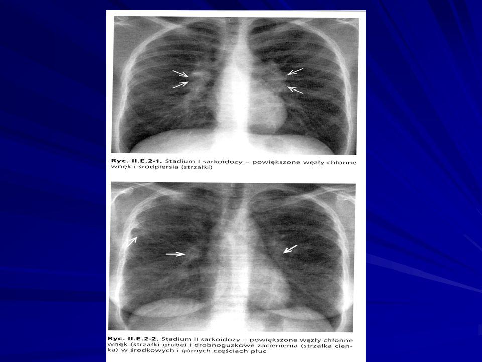 2.EKG 3. RTG klatki piersiowej 4. KT (MR) 5. Scyntygrafia 6.