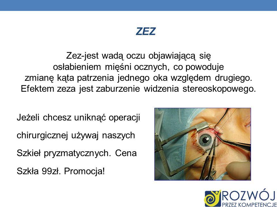 ZEZ Zez-jest wadą oczu objawiającą się osłabieniem mięśni ocznych, co powoduje zmianę kąta patrzenia jednego oka względem drugiego. Efektem zeza jest