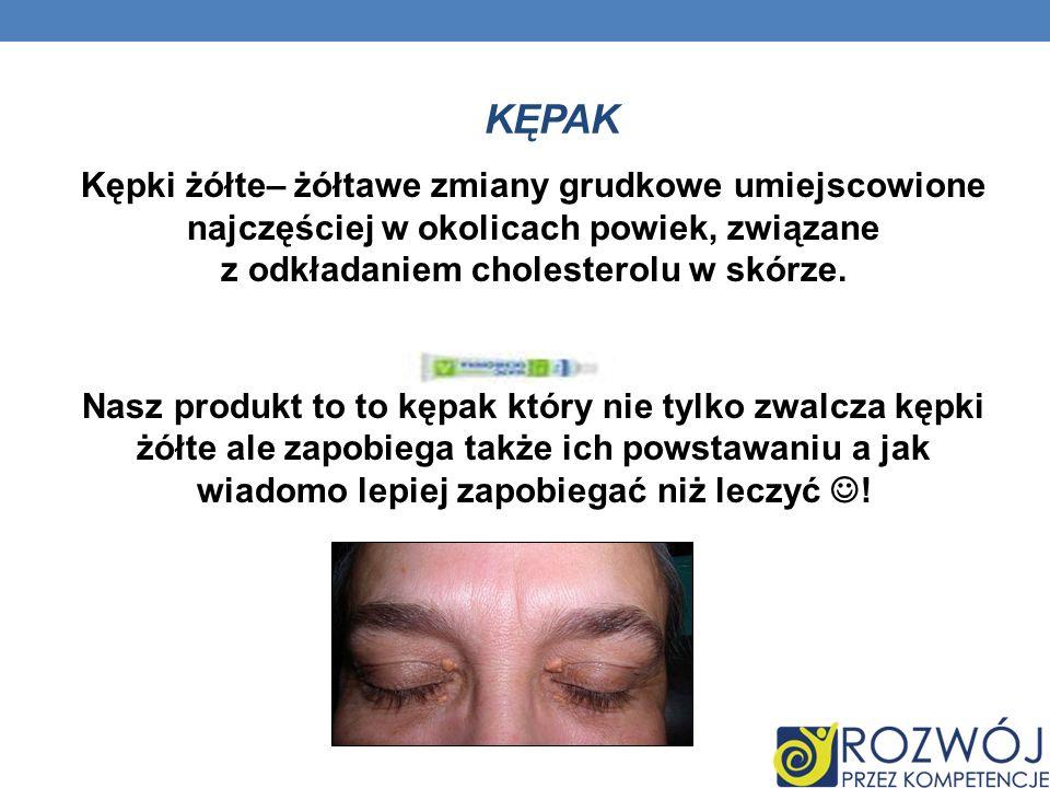 KĘPAK Kępki żółte– żółtawe zmiany grudkowe umiejscowione najczęściej w okolicach powiek, związane z odkładaniem cholesterolu w skórze. Nasz produkt to