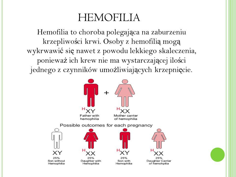 HEMOFILIA Hemofilia to choroba polegaj ą ca na zaburzeniu krzepliwo ś ci krwi.