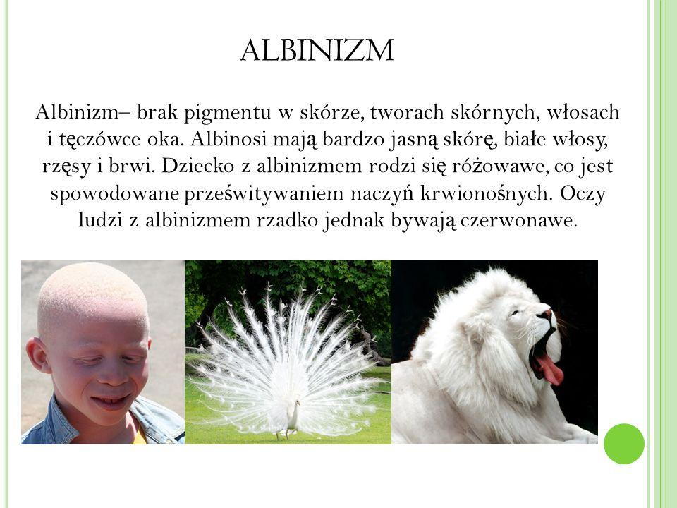 ALBINIZM Albinizm– brak pigmentu w skórze, tworach skórnych, w ł osach i t ę czówce oka.