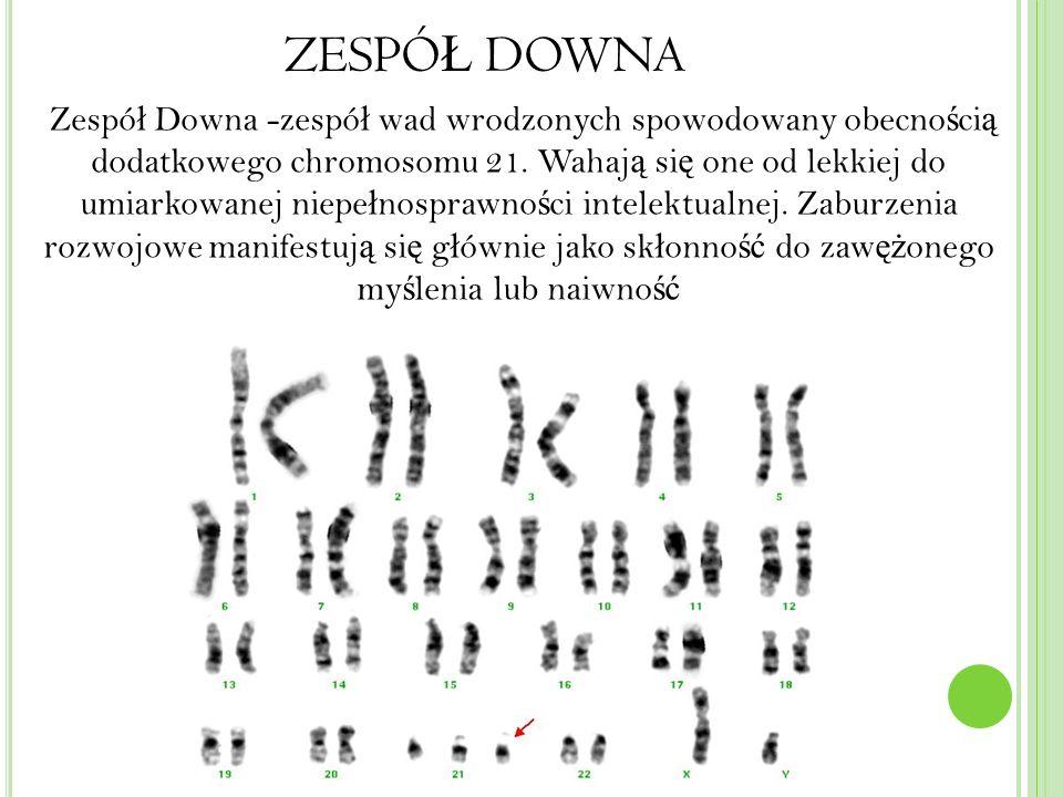 ZESPÓ Ł DOWNA Zespó ł Downa -zespó ł wad wrodzonych spowodowany obecno ś ci ą dodatkowego chromosomu 21.