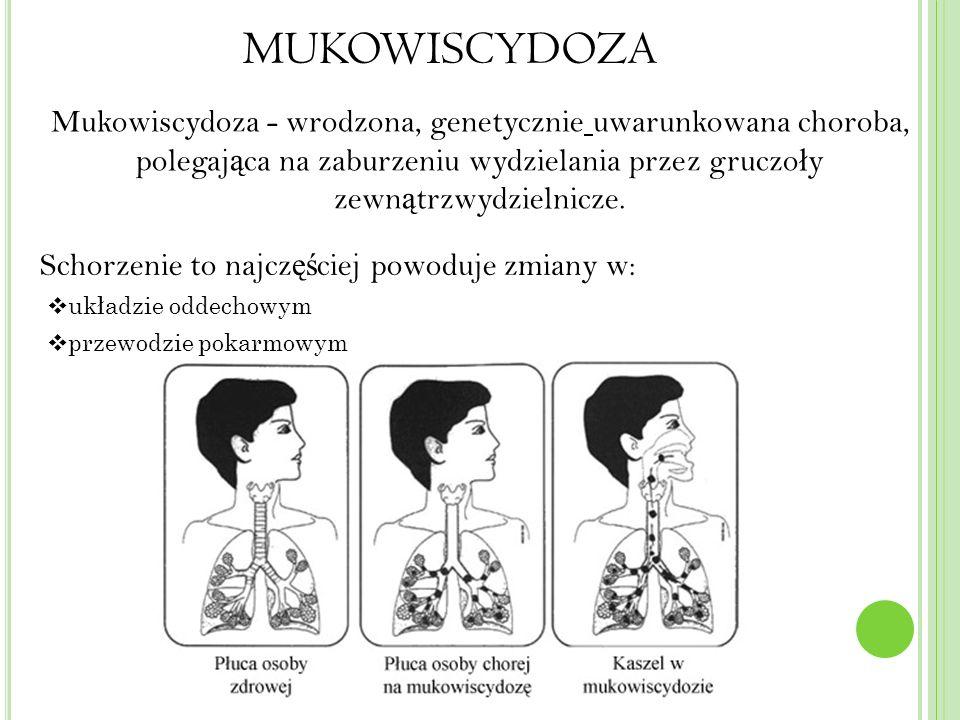 MUKOWISCYDOZA Mukowiscydoza - wrodzona, genetycznie uwarunkowana choroba, polegaj ą ca na zaburzeniu wydzielania przez gruczo ł y zewn ą trzwydzielnicze.
