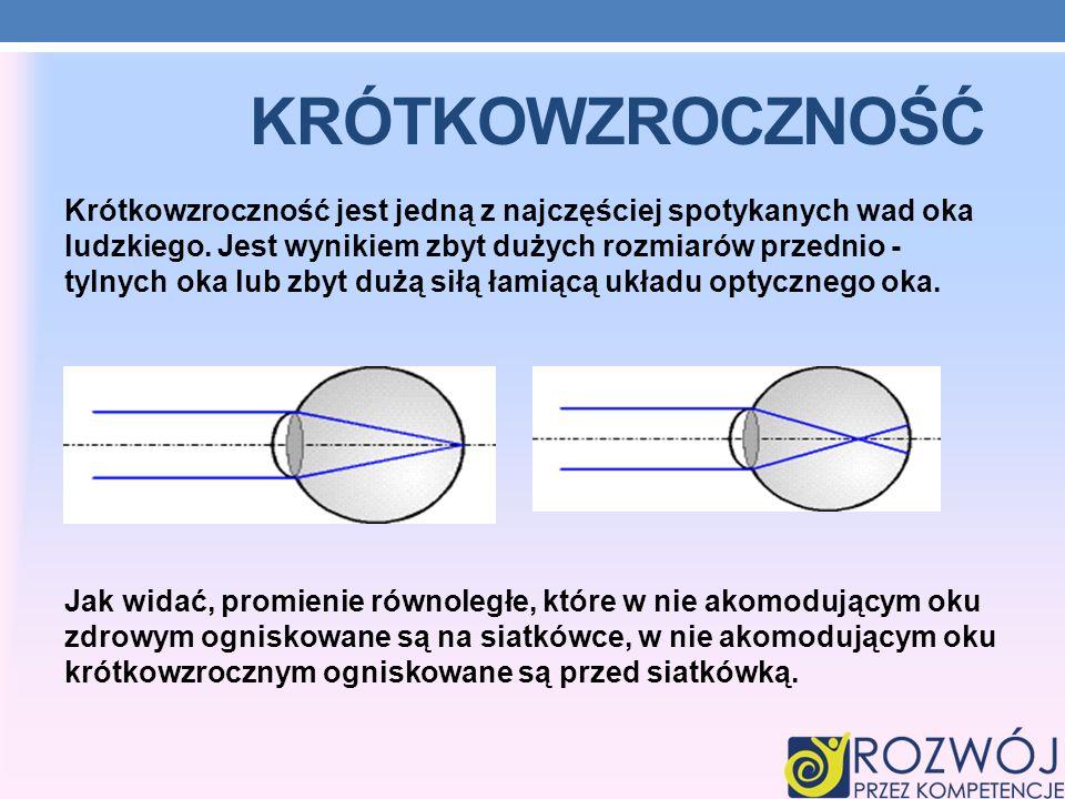 KRÓTKOWZROCZNOŚĆ Krótkowzroczność jest jedną z najczęściej spotykanych wad oka ludzkiego. Jest wynikiem zbyt dużych rozmiarów przednio - tylnych oka l