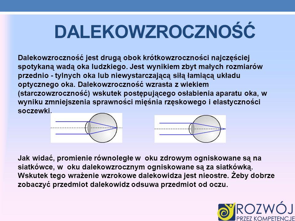 DALEKOWZROCZNOŚĆ Dalekowzroczność jest drugą obok krótkowzroczności najczęściej spotykaną wadą oka ludzkiego. Jest wynikiem zbyt małych rozmiarów prze