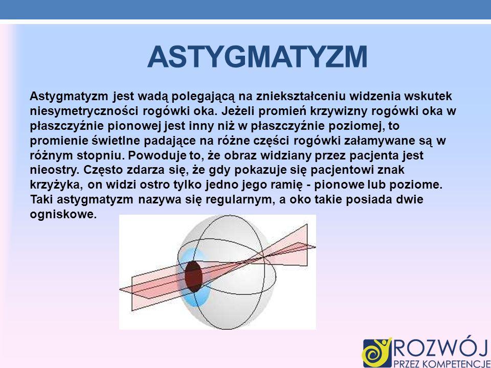 ASTYGMATYZM Astygmatyzm jest wadą polegającą na zniekształceniu widzenia wskutek niesymetryczności rogówki oka.